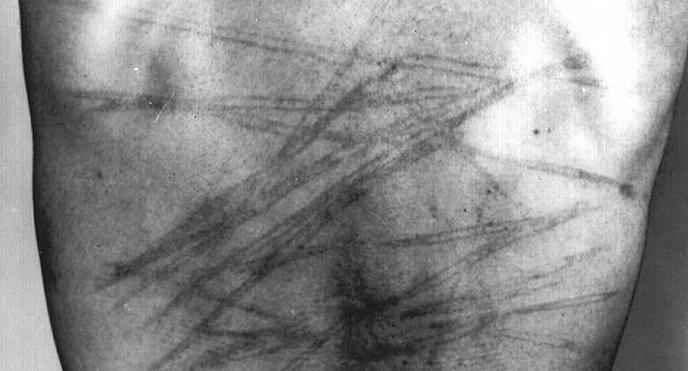 تصویر شکنجه، میراث شومِ حکومت پهلوی برای رژیمِ ولایت فقیه